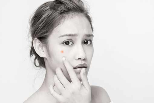 Troubled With Acne? Here's a List of Do's and Don'ts to Follow