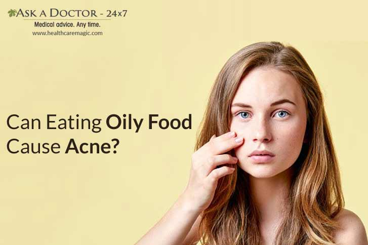 Truth or Myth: Eating Oily Food Cause Acne Breakout!