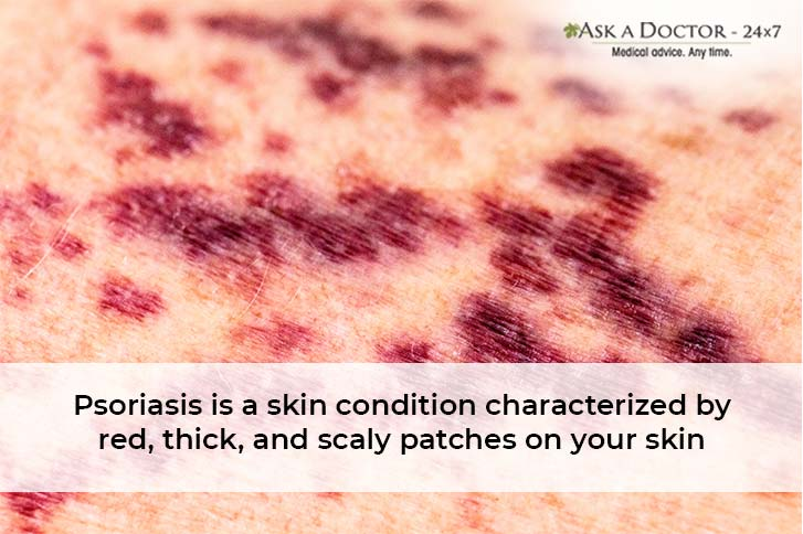 How to Tell If Your Rash is Actually Psoriasis? Learn the Ways to Treat It Naturally!