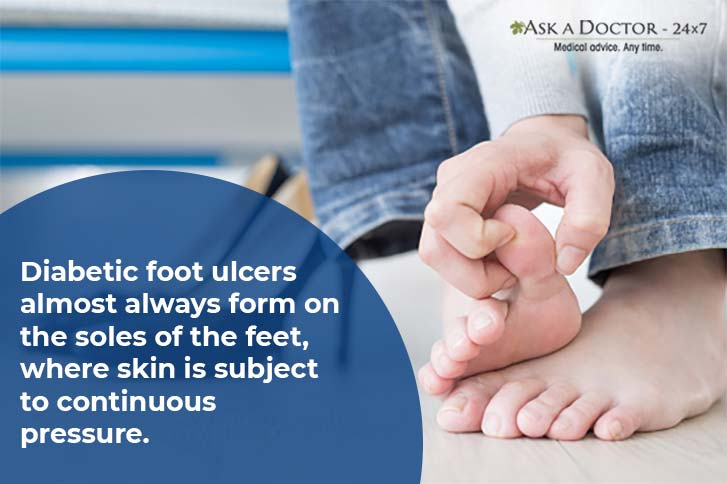 Diabetic Foot Ulcers: Why You Should Never Ignore Them, and Remedies to Heal Them
