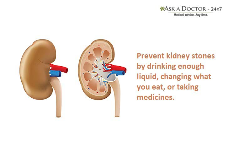 7 Steps Towards Kidney Stone Prevention That You Must Consider!