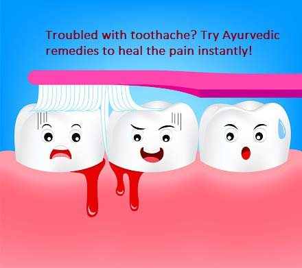 6 Ayurvedic Remedies To Tackle Toothache Naturally